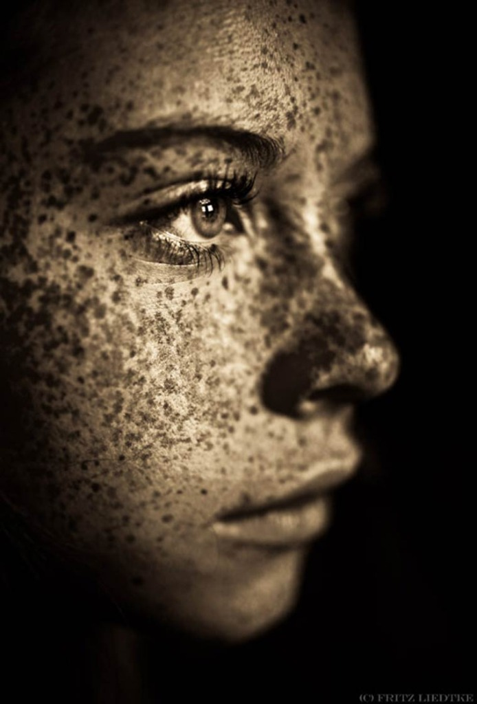 Freckles by Fritz Liedtke